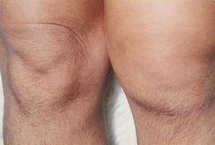 Two knees with one affected with arthritis.