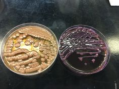Klebsiella in EMB and MAC