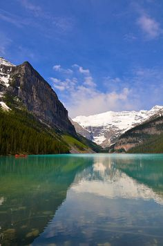 Lake Louise by Necessary Indulgences.