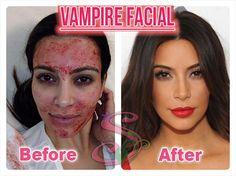 Kim Kardashian Image Credit Herself Demonstrating