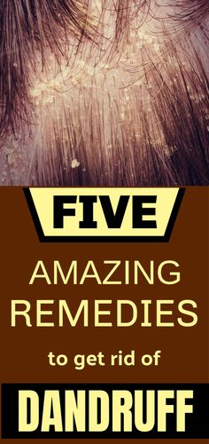 How To Get Rid Of Dandruff Fast – 5 Amazing Home Remedies Loading. How To Get Rid Of Dandruff Fast – 5 Amazing Home Remedies Home Remedies For Dandruff, Hair Remedies, Coconut Oil For Dandruff, Hair Scrub, Getting Rid Of Dandruff, Dry Scalp, Health And Beauty Tips, Home Goods