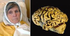 Goodbye to Alzheimer's thanks to this; Alzheimers, Alzheimer's Brain, Brain Health, Healthy Living Tips, Healthy Life, Health And Wellness, Health Fitness, Degenerative Disease, Colon