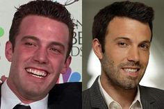 Celebs with Cosmetic Dentistry