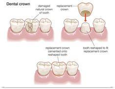 Encyclopaedia Britannica Poster Print Wall Art Print entitled Dental crown, None