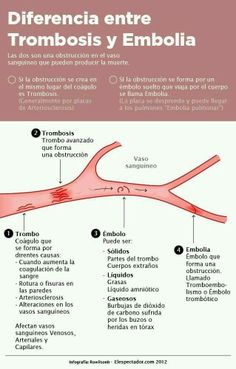 Diferencia entre trombosis y embolia - Difference between thrombosis and embolism Health And Nutrition, Health Tips, Health Care, Medicine Notes, Medical Facts, Nursing Notes, Med Student, Veterinary Medicine, Anatomy And Physiology