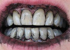 9 manieren om op een natuurlijke manier je tanden te bleken - TrendBuzz