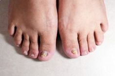 About Onychomycosis or nail fungus. What is nail fungus?