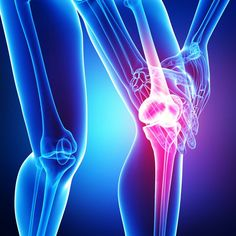Inflammatory conditions such as arthritis are proving to be an excellent area for complementary and natural support.