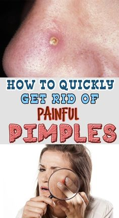 how to get rid of pimples using ice