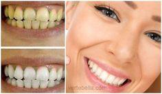Vinagre de manzana para blanquear los dientes y lucir una sonrisa estupenda! Es mas que importante cuidar nuestros dientes, una linda y limpia sonrisa puede