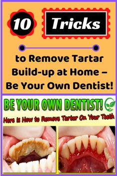 Here Are 10 Tricks to Remove Tartar Build-up at Home – Be Your Own Dentist! How To Get Rid, How To Remove, Romantic Pictures, New Pins, Fun Facts, Weird, Health Fitness, Healthy, Funny Humor