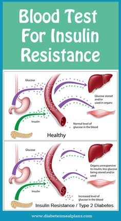 How To Naturally Treat Thyroid Resistance