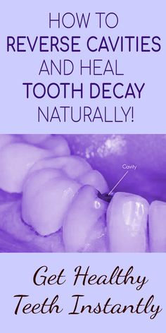 Healthy gums and teeth make it easy for you to eat as well as enjoy food. Multiple problems can have a negative impact on your oral health. However, taking good care of your gums and teeth will keep them strong as you age. Oral Health, Dental Health, Health Tips, Health Care, Teeth Health, Tooth Decay Treatment, What Causes Tooth Decay, Reverse Cavities, Remedies For Tooth Ache