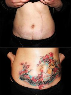 from scars to beautiful tattoo