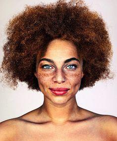 Fotógrafo Retrata A Beleza Única De Pessoas Com Sardas