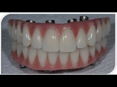 Implant Dentist, Dental Cosmetics, Teeth Care, Cosmetic Dentistry, Tooth Fairy, Oral Health, Teeth Whitening, Hair Beauty, Desserts