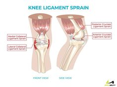 Knee ligaments: anatomy of knee ligament sprains causing back of k...