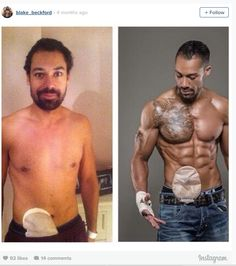 Super HumansFitness Model Doesn't Let Colostomy Bag Stop Him
