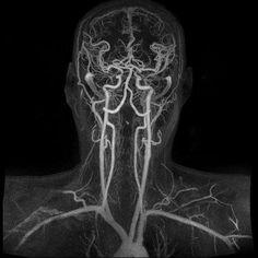 Магнитно-резонансная ангиография кровеносных сосудов мозга