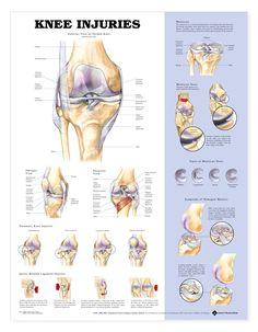 Resultado de imagem para sports injury posters