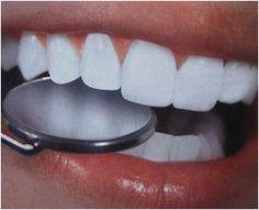 Удаление зубного камня киев