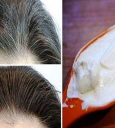 Try This Simple Trick to Get Rid of Brown Spots on Face & Skin - Daily Health Magazine Grey White Hair, Covering Gray Hair, Coconut Oil For Face, Brown Spots On Face, Hair Loss Remedies, Face Skin, Healthy Hair, Your Hair, Cool Hairstyles