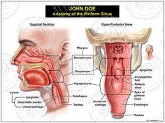 This exhibit depicts the normal sagittal and open posterior anatomy of the piriform sinus, including: the pharynx, esophagus, trachea, and larynx.