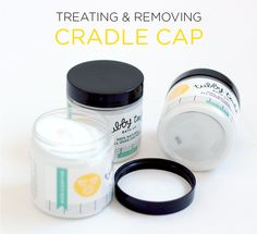 Treating and Removing Cradle Cap