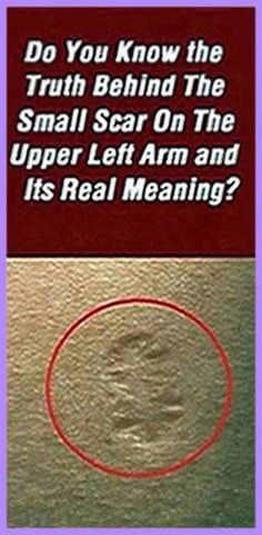 Do You Know The Truth Behind The Small Scar On The Upper Left Arm And Its Real Meaning – Natural Healing Education Holistic Remedies, Holistic Healing, Natural Healing, Health Remedies, Natural Remedies, Health Guru, Health And Wellbeing, Health And Nutrition, Gut Health