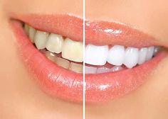 Teeth bleaching results.