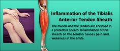 Excessive overpronation when walking or running causes inflammation of the Tibialis Anterior Tendon Sheath...read: http://painassist.com/sports-injuries/lower-leg-injuries/inflammation-of-the-tibialis-anterior-tendon-sheath