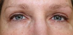 Sudden Change is a Game Changer for Eyes! Prime Beauty Blog