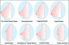 The Many Shapes of Breasts