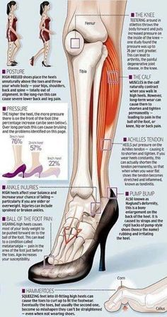 Some of the effects of wearing high heels to the legs and feet.    Just imagine the effect on the rest of the body!