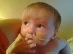 Mason was born with coarctation of the aorta, 4 large VSDs, split sternum, joint cervical vertebrae, an omovertebra on his shoulder and only one kidney. He had his open heart surgery at 1week old where they repaired the coarch and closed one hole. Over time two other holes have closed so only one remains.