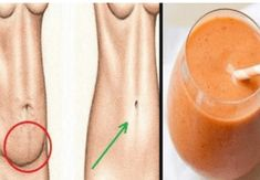 My Cardiologist Cleans My Arteries and Heals High Blood Pressure with Only 4 Tablespoons a Day of This Natural Remedy - InShapeToday 24 Hour Detox, Gastro, Burn Stomach Fat, Abdominal Fat, Le Diner, Fun Drinks, Health Problems, Natural Remedies, The Cure