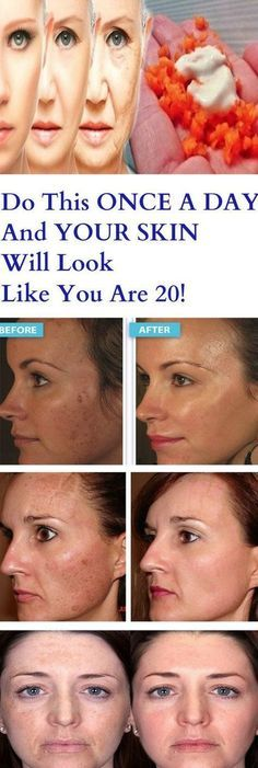 Do This ONCE A DAY And YOUR SKIN Will Look Like You Are 20! – Stay Healthy Magazine