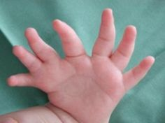 Polydactyly is a medical term used to describe extra fingers on the hands or toes on the feet. The extra fingers or toes may be small and non-functional, or they may be fully formed with bones and skeletal connections. Extra digits can exist in different places on the hands and feet. Polydactyly often occurs bilaterally (on both hands or both feet), or it may occur on just one hand or foot. Similarly, a person may have extra digits on just the hands, just the feet, or other combinations.