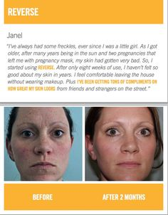 Reverse regimen by Rodan and Fields. Before and after. CLICK ON PICTURE TO SEE MORE INFORMATION. Change Sun Damage