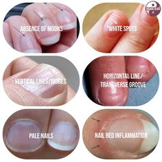Fingernails can give you clues about what your body is lacking and what it needs more of, such as minerals.