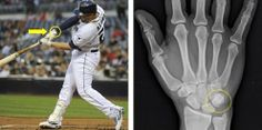 Wednesday, Tuesday, Baseball Injuries, Lineup, Mlb, Recovery, San Diego, Image, Wilderness Survival