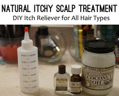 Natural Itchy Scalp Treatment: DIY Itch Reliever for All Hair Types