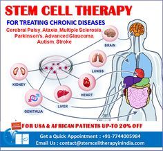 India Is Providing Access To Stem Cell Therapy For Treating Chronic Diseases Organ Transplant, Adipose Tissue, Stem Cell Therapy, Cerebral Palsy, Multiple Sclerosis, Stem Cells, Chronic Illness, Disorders, Clinic