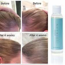 nuskin shampoo results - Google Search Nutriol Shampoo, Hair Loss Shampoo, Hair Remedies For Growth, Hair Loss Remedies, Nu Skin, Prevent Hair Loss, Hair Regrowth, Hair Loss Treatment, Grow Hair