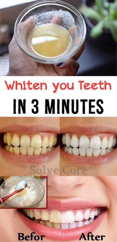 Natural Teeth Whitening Remedies Whiten Your Teeth In 3 Minutes Tap the link for an awesome selection cat and kitten products for your feline companion! Teeth Whitening Remedies, Natural Teeth Whitening, Whitening Kit, Skin Whitening, Quick Teeth Whitening, Health Guru, Oral Health, Men Health, Health Matters
