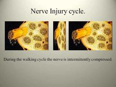 Peripheral Neuropathy Closer Look A How the Nerves of the Foot are Destroyed
