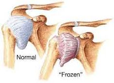 Natural Cures For Frozen Shoulder. Looks like I'm in for a second frozen shoulder :( Health Tips, Health And Wellness, Health And Beauty, Health Care, Health Exercise, Natural Home Remedies, Natural Healing, Natural Medicine, Herbal Medicine
