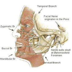 Bell's Palsy - explained in simple terms. (7th cranial nerve - Nervus Facialis)