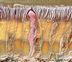 Trachea lining. Coloured scanning electron micrograph (SEM) of a section through the wall of a trachea (wind pipe). The trachea links the larynx to the lungs. The lining consists of mucus-secreting goblet cells (one seen at centre, pink) and epithelial cells (vertical) that are covered in cilia (hair-like). Mucus traps debris, such as dust particles or bacteria, in the inhaled air, while the beating of the cilia moves the mucus and particles upwards out of the respiratory tract. This helps…