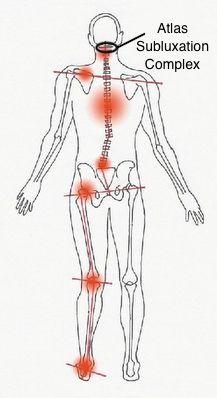 「psoas muscle LLD」的圖片搜尋結果